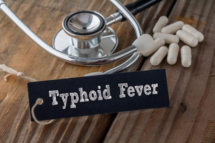 Typhoid fever as a communicable disease